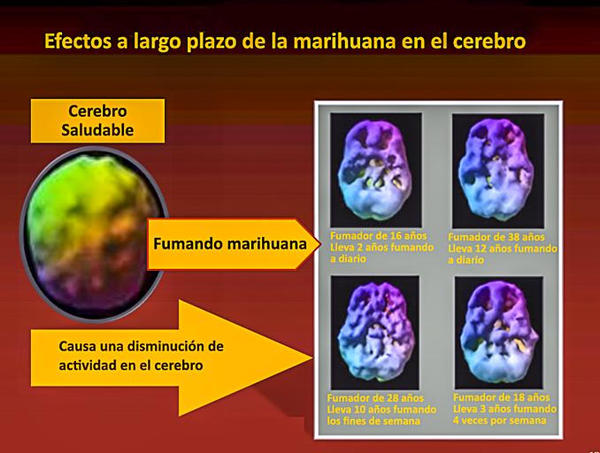 Efectos de la marihuana en el cerebro.